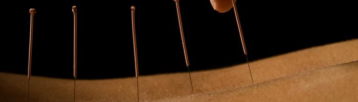 Acupuncture at Bóín Dé